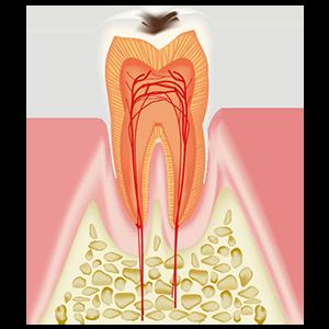 小さなむし歯C2