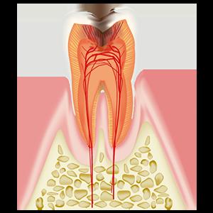 歯髄まで達したむし歯C3~
