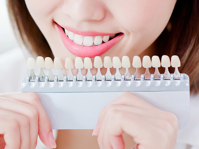 歯の色チェック